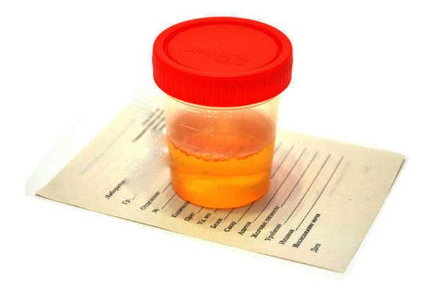 лечение патологии с мочевиком