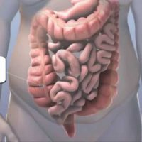 Болезни толстой кишки: симптомы и лечение
