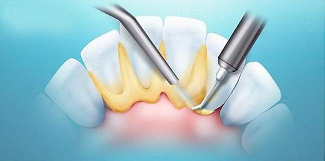 устранение зубного камня