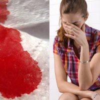 Кровь из попы