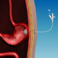 Что такое гастростома: показания и правила кормления больного через трубку