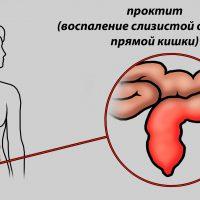 Проктит кишечника: симптомы и лечение