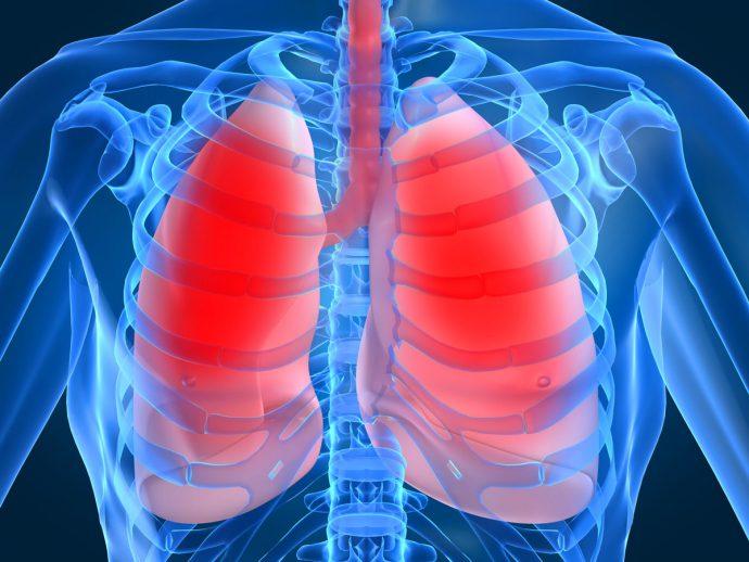 воспаление в легких