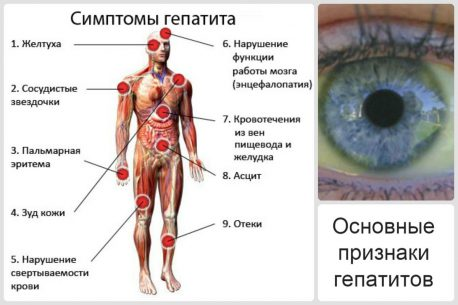 гепатит