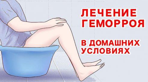 лечение геморроя ванночками