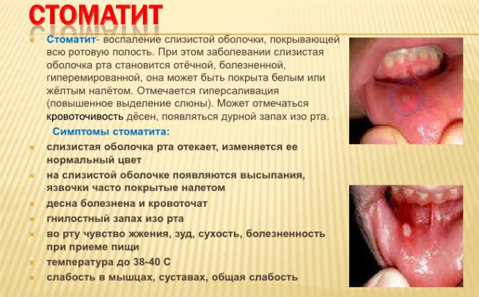 симптомы стоматита