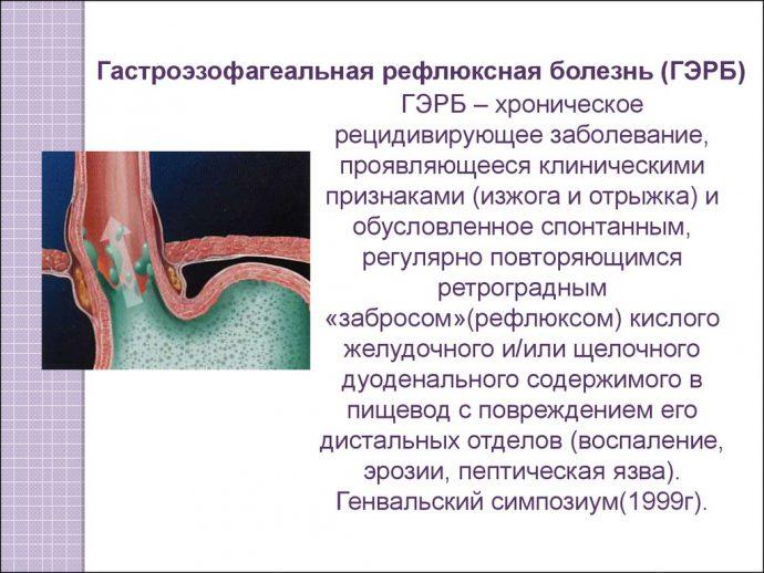 гастро рефлюкс эзофагеальная болезнь