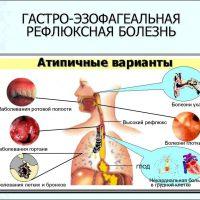 Симптомы гастроэзофагеальной рефлюксной болезни