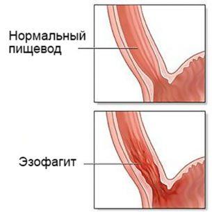 катаральный эзофагит