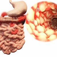 Причины и лечение спазмов кишечника