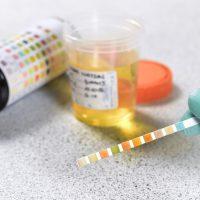 Почему появляется белок в моче, норма, нормализация показателей