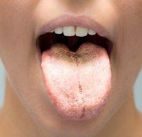 Причины появления белого налета на языке,  методы лечения
