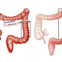 Резекция кишечника